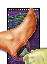 Foot-ultrasound