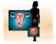 cervicalcancer